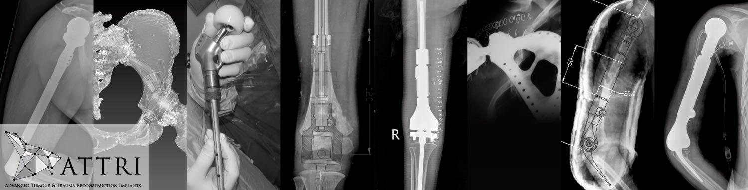 Savant Attri Orthopaedics Xray Scans